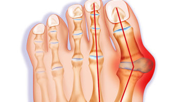 Image of Bunions